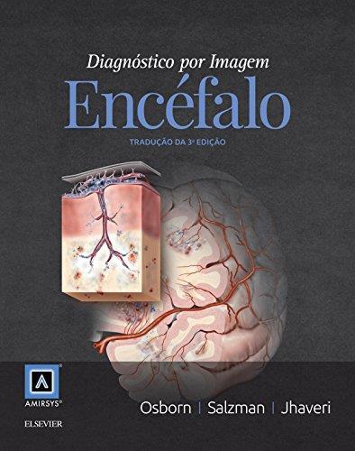 Dilivros diagnostico por imagem encefalo fandeluxe Choice Image