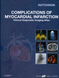 Complications of Myocardial Infarction - Clinical Diagnostic Imaging