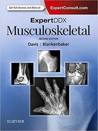 Dilivros expertddx musculoskeletal fandeluxe Choice Image