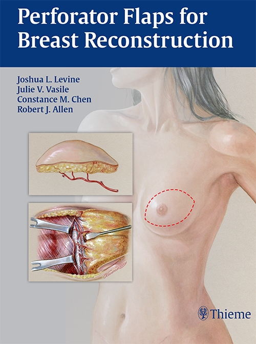 PERFORATOR FLAPS FOR BREAST RECONSTRUCTION